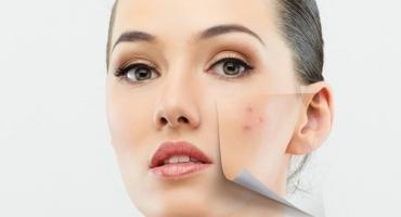 درمان جوش صورت با کرم و ژل ضد جوش