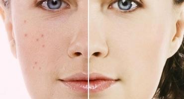 درمان جوش صورت و آکنه با کرم و ژل سینره