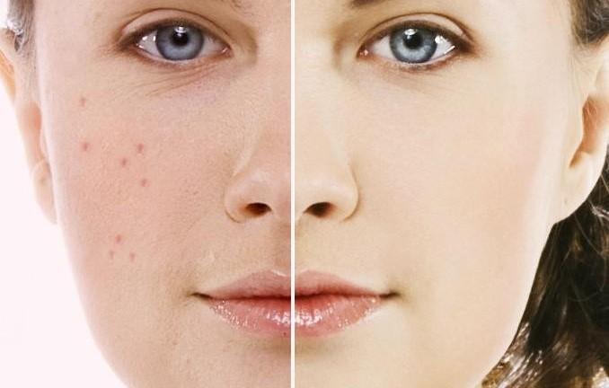 درمان ضد جوش صورت